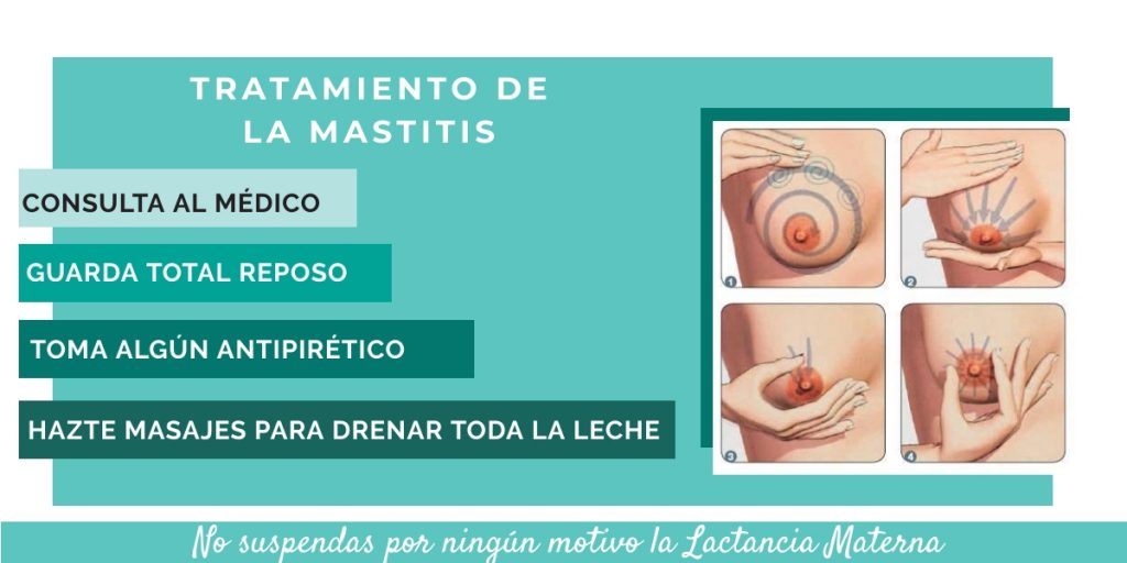 mastitis tratamiento - lactancia materna
