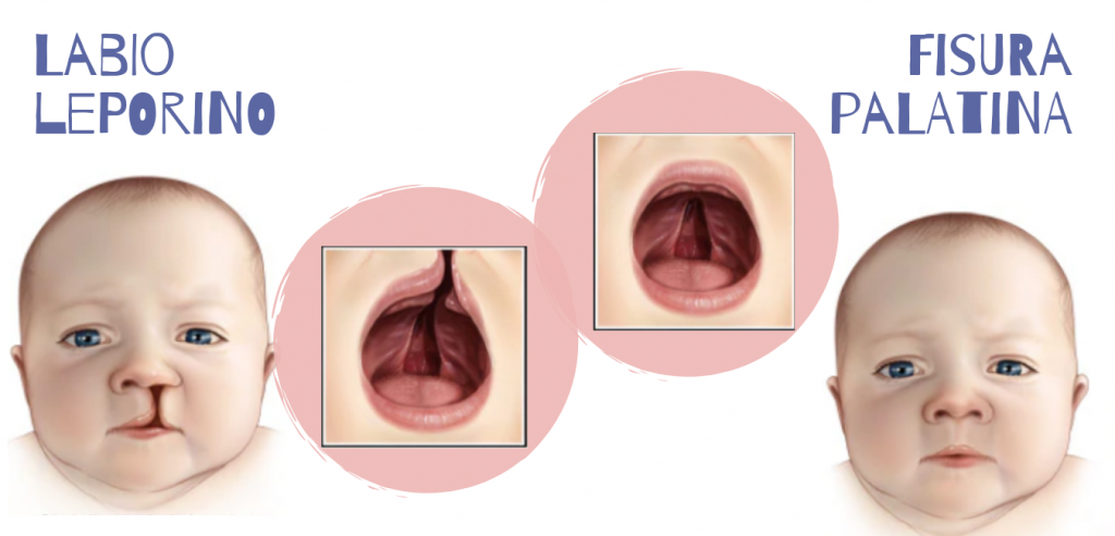 Labio leporino o fisura palatina