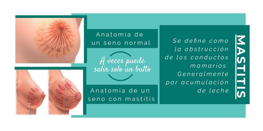 qué es mastitis