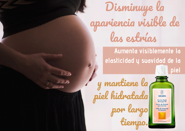 estrias por el embarazo