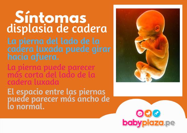 displasia de cadera en bebés tratamiento