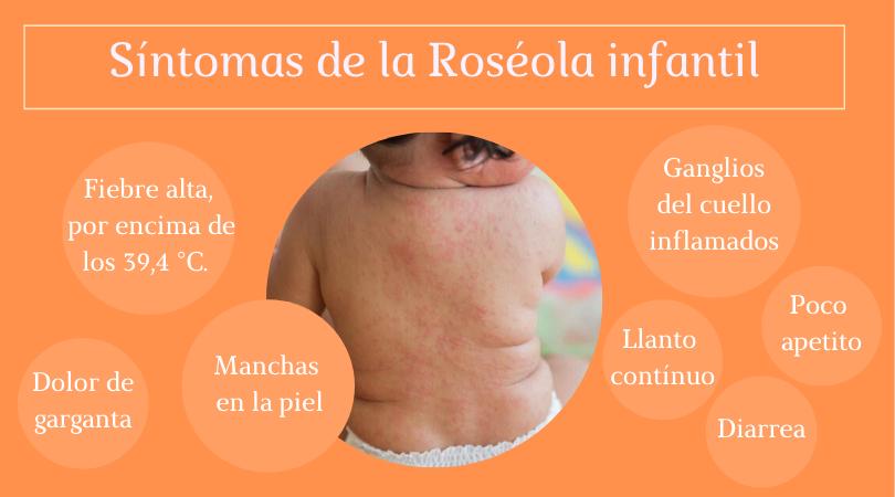 síntomas de la roséola infantil