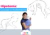 bebe con hipotonia