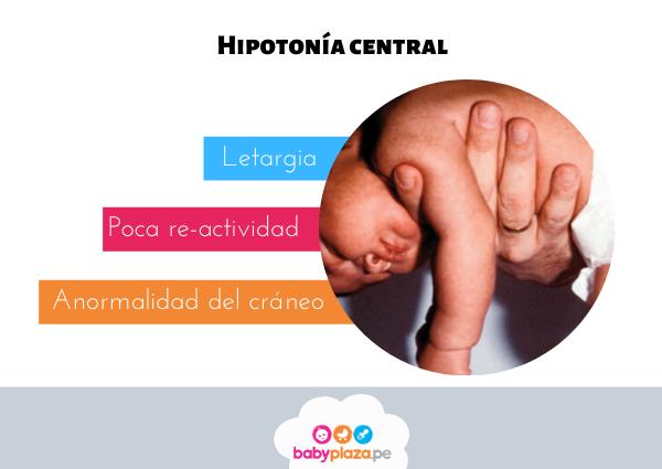 hipotonía en bebes tratamiento